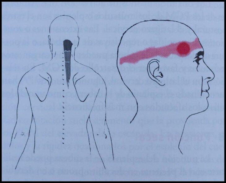 Músculo-semiespinoso-de-la-cabeza