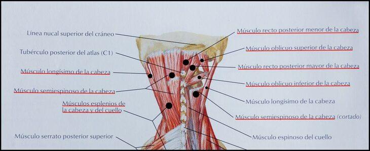 Músculos cefalea