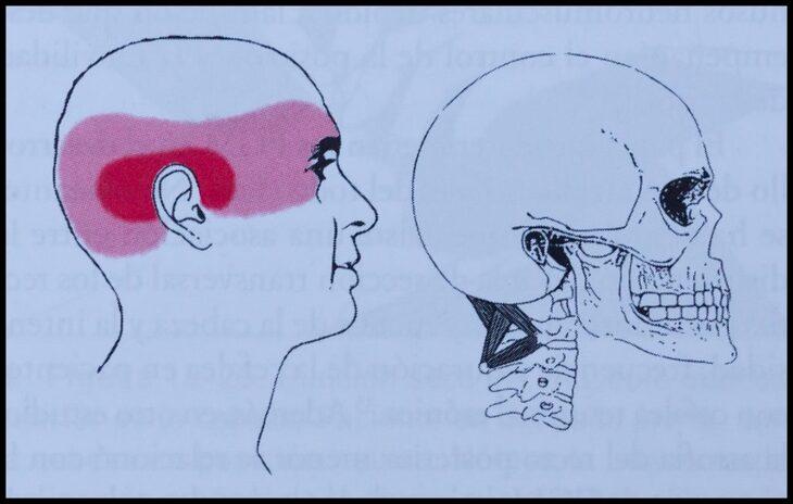 músculos-suboccipitales